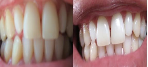 dentess