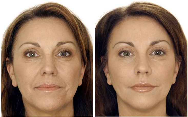 before-after-botox3-gala-b
