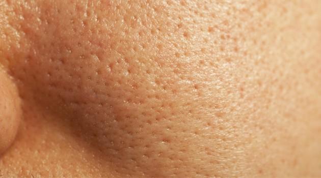 Tratamento caseiro para poros dilatados