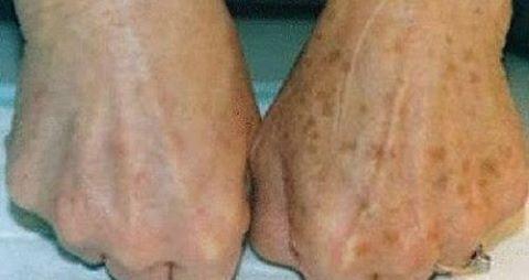 Como acabar com as manchas das mãos