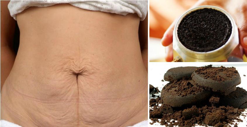 Os diferentes benefícios do café para o seu corpo