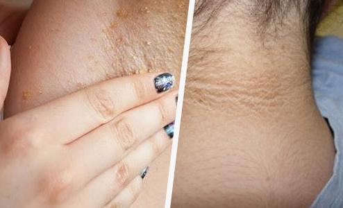 Como clarear as axilas e o pescoço naturalmente?