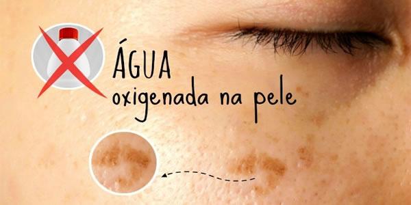 Água-oxigenada-no-rosto-contra-manchas-é-prática-perigosa-que-destrói-sua-pele