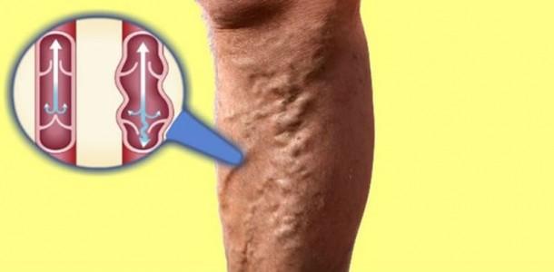 4-tipos-de-varizes-que-são-perigosos-para-sua-saúde-e-como-identificá-los-610x300