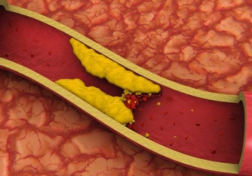 Como_controlar_colesterol_alto_naturalmente-500×350