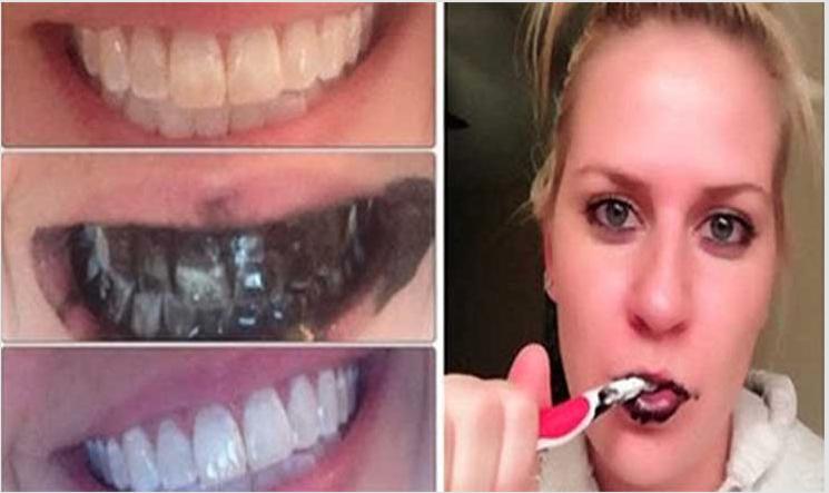 Inacreditável e infalível truque para branquear os dentes de forma rápida e duradoura!