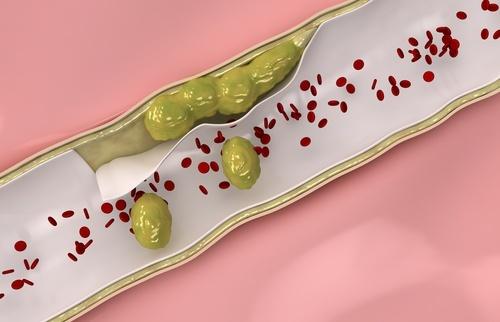 Limpar-arterias-500x322-500x322