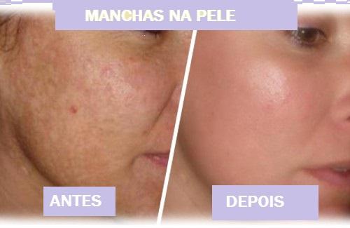 Limão de pele de cara de lugares de pigmentary