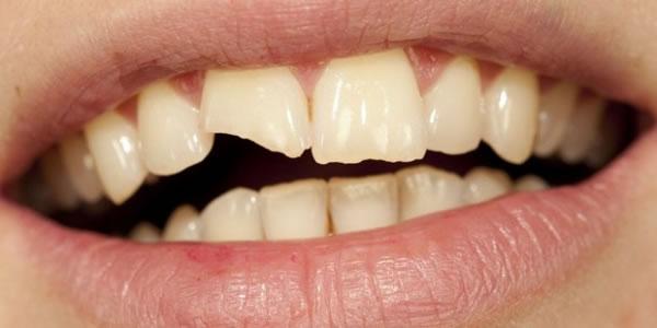 Meu-dente-quebrou-e-agora-O-que-eu-faço