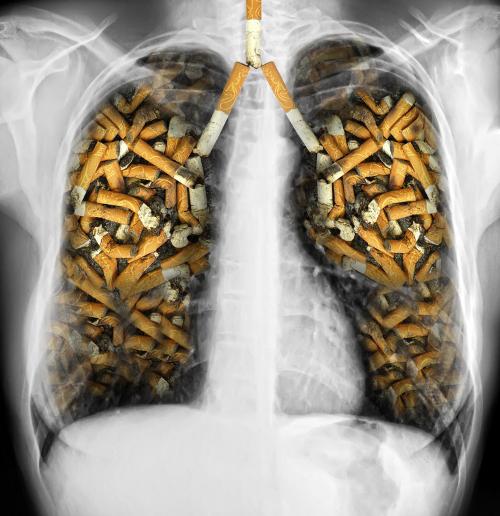 Pulmones-cigarros