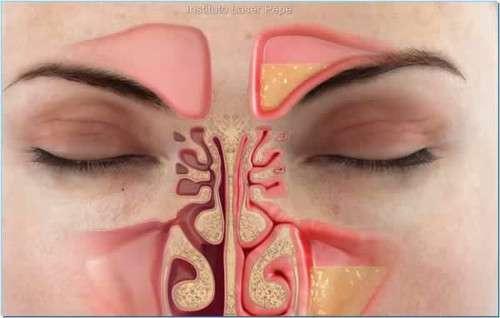 congestao-nasal-500×318