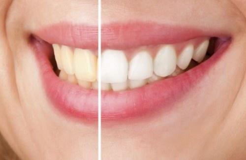 dentes-500×325