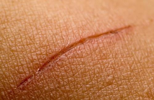 remedios-cicatriz-500x325