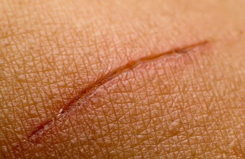 remedios-cicatriz-500×325