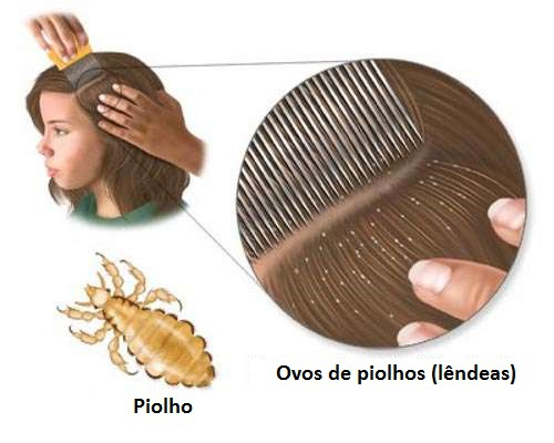 tratar-piolhos-500x400