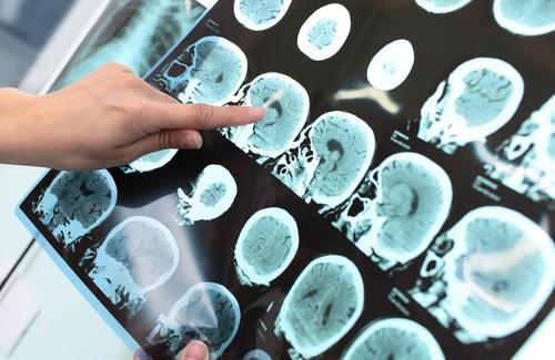 Alzheimer-500×325-500×325