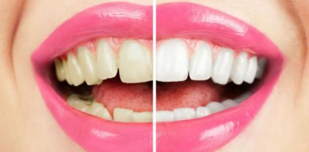 Clareamento-dos-dentes-610x300