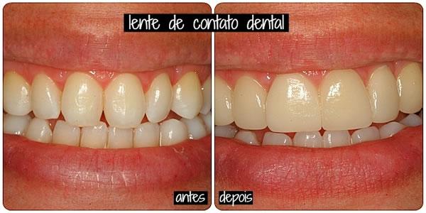 Lente-de-contato-nos-dentes-dá-sorriso-SUPERbranco