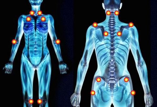 Pontos-de-dor-fibromialgia-500×340