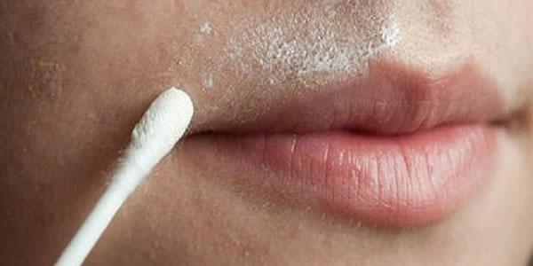 Remédio-Natural-para-Depilar-o-Buço-para-Sempre