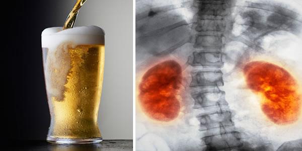 Veja-o-que-acontece-com-seu-corpo-quando-você-bebe-cerveja