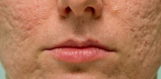 acne-marcas-cicatrizes-no-rosto-610×300