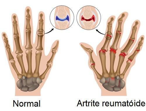 artrite2-500x380