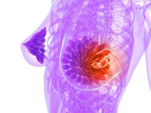 câncer-de-mama-500×375
