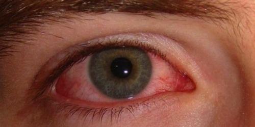olhos-vermelhos-500×249