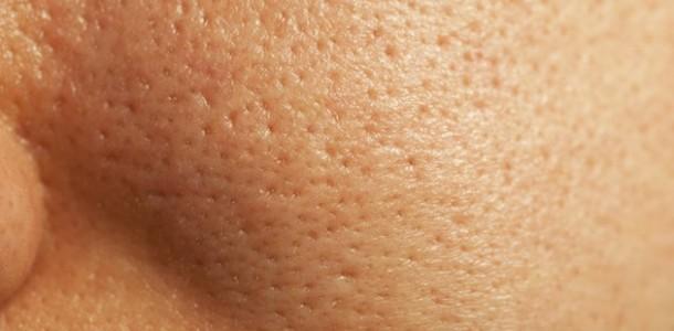 poros-dilatados-tratamentos-caseiros-1-610×300