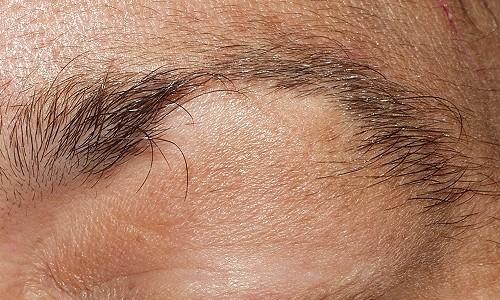 Alopecia-sobrancelhas-500×330-500×330-500×300