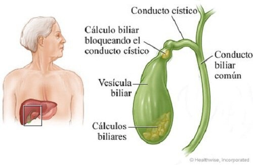 Calculos-na-vesicula-500×326-500×326