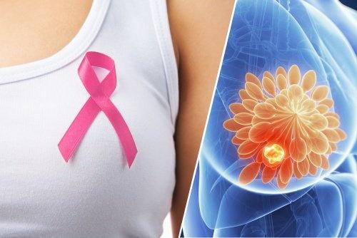 cancer-de-mama-500×334