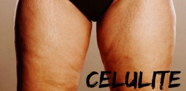 celulite-causas-610×300