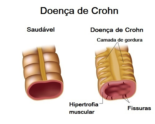 doenca-de-Crohn1-500x400