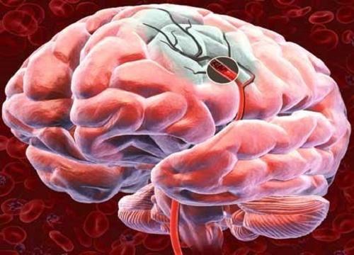 cerebro-500x360