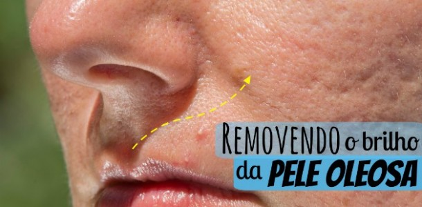pele-oleosa-acne-principal-2-610x300
