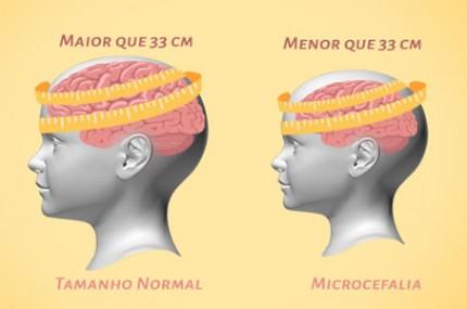 Afinal-o-que-acontece-com-um-bebê-que-nasce-com-microcefalia-430×285