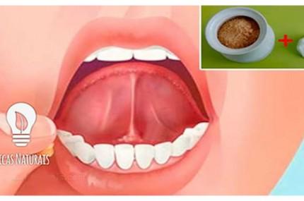 Coloque-sal-e-açúcar-debaixo-da-língua-antes-de-se-deitar-e-veja-o-que-acontece-430×285