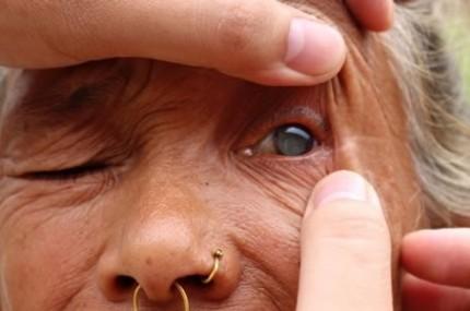 Em-apenas-5-minutos-médico-faz-cegos-voltarem-a-ver-430×285