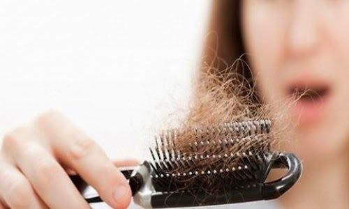 Queda-cabelo-500×300-500×300