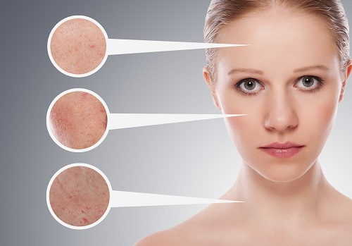 acne-500×349