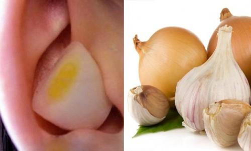 alho-e-cebola-nos-ouvidos-500×302