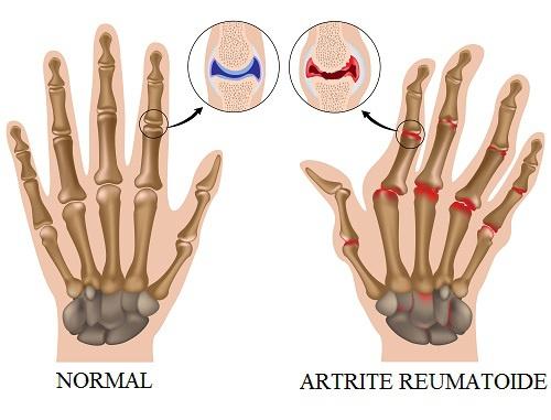 artrite-reumatoide-500x381