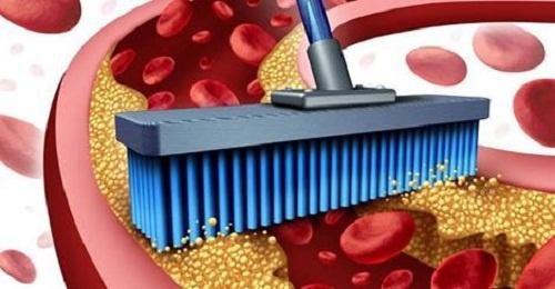 Limpiar-las-arterias-500×260