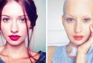 large_modelo-cancer