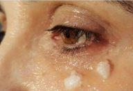 oleo_de_coco_-_olhos_-_edit