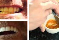 este-homem-clareia-os-dentes-com-um-truque-absurdamente-simples-430×285