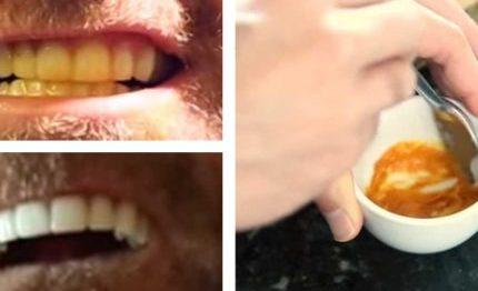este-homem-clareia-os-dentes-com-um-truque-absurdamente-simples-430x285