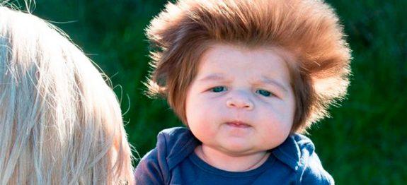 bebe-fofo-e-cabeludo-urso